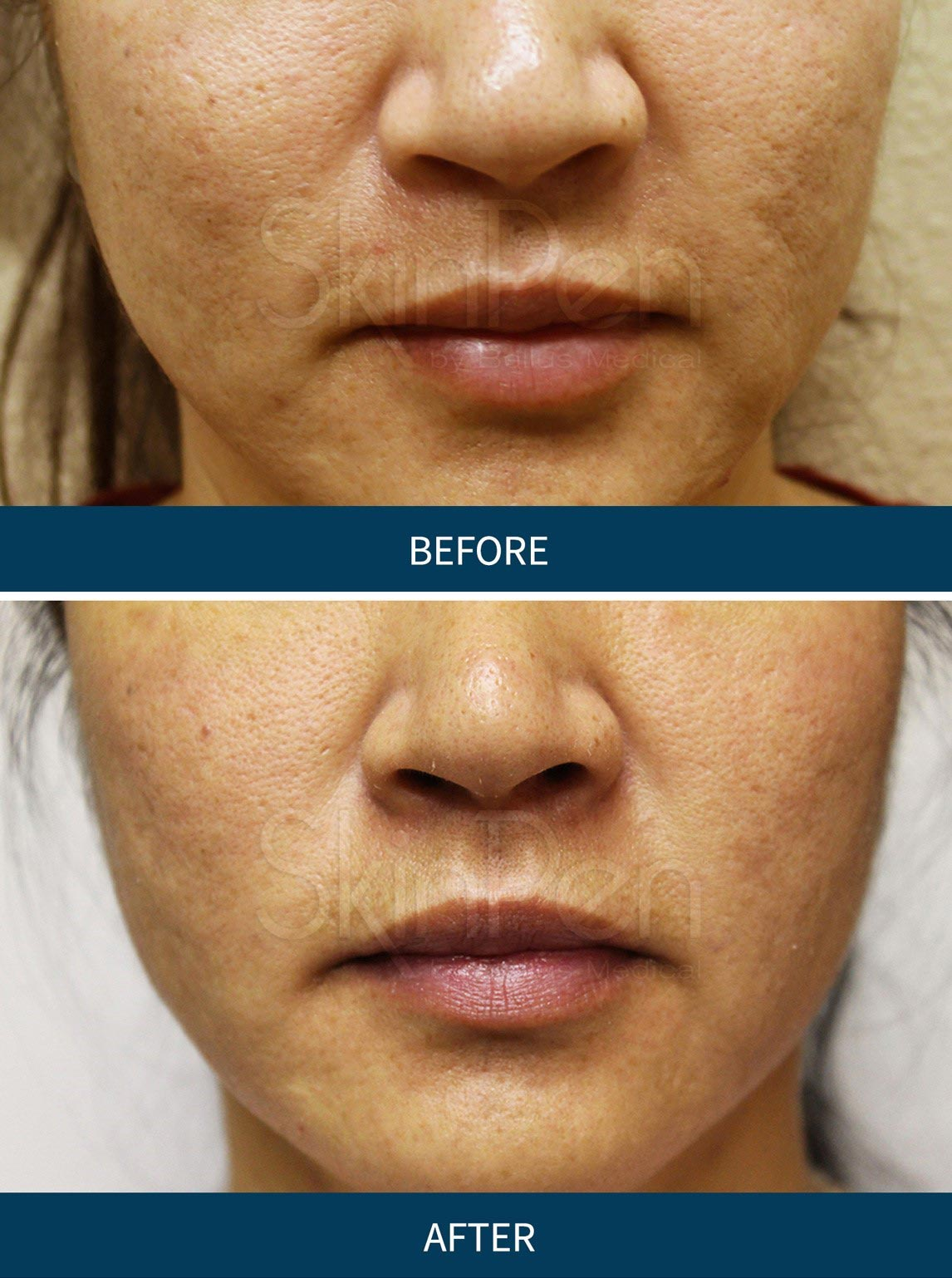 Micro Needling Results